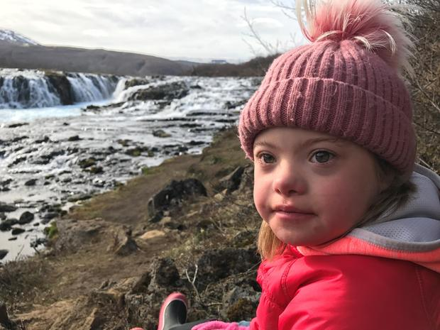 Because of Abortions, Down Syndrome in Iceland is Disappearing