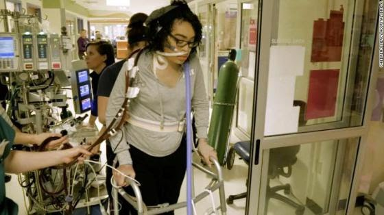 Teen on Life Support for Over 130 Days