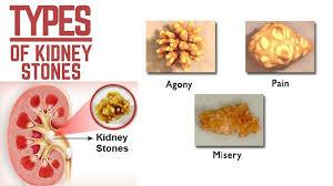 Kidney Stones Can Be Dangerous